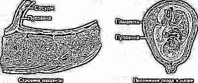 Пуповина имеет 3 или 2 сосуда: что это значит, единственная артерия при беременности, нормы и расположение, индекс резистентности