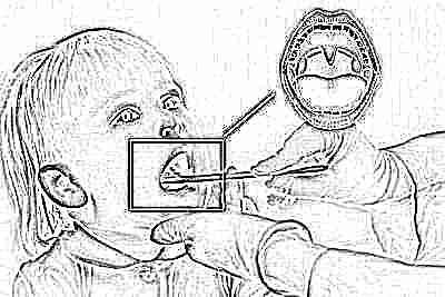 Осложнения после орви у детей на мышцы ног thumbnail