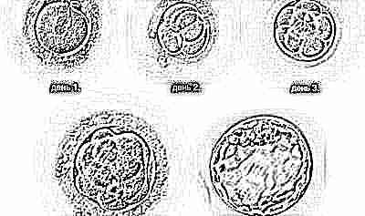 Эмбрион не приживается 32