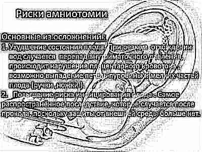 Прокалывают мочевой пузырь при родах