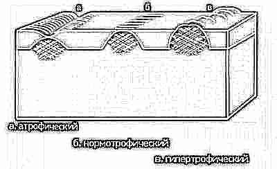 Шрам кесарево сечение фото 62