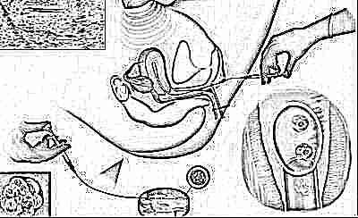 Положительный тест на беременность ложный