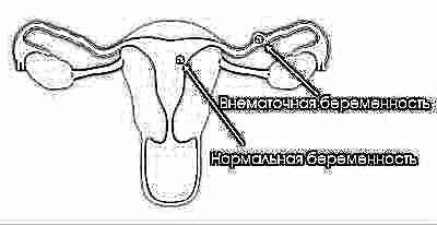 Что покажет тест если беременность внематочная 6