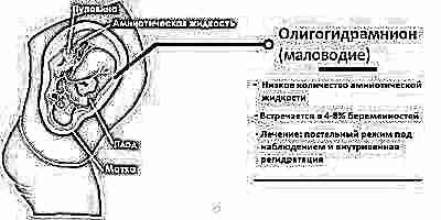 Амниотический индекс при беременности норма 32 недели thumbnail