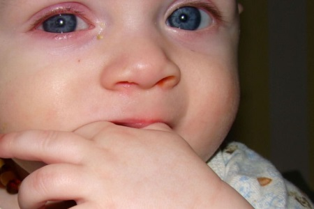 Как долго лезут клыки у ребенка