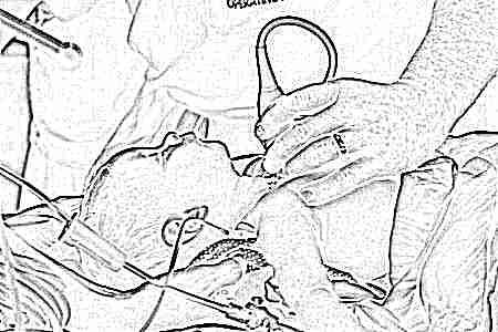 Признаки порока сердца у новорожденных