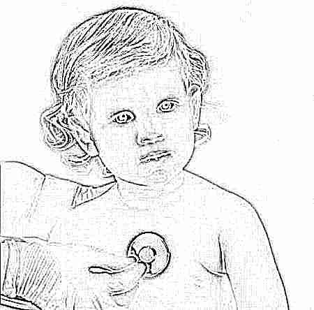 Сердечная недостаточность у ребенка симптомы