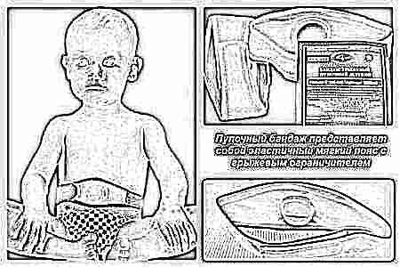 Пупочная грыжа у новорожденных мальчиков комаровский
