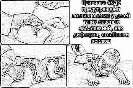 Как подготовить ребенка к акдс