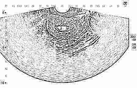 Вредно ли для плода УЗИ при беременности: как часто и сколько раз можно делать, вред и влияние на ребенка, насколько опасно