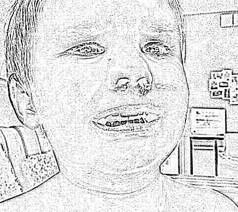 У ребенка раз в месяц идет кровь из носа причины и лечение