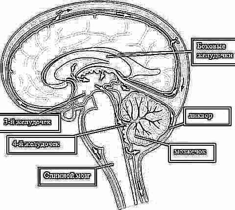Изображение - Как понять что у ребенка внутричерепное давление vnutricherepnoe-davlenie-u-rebenka-2