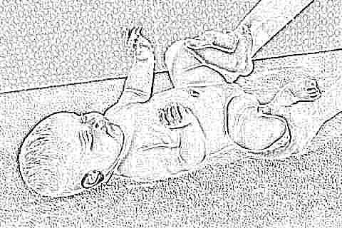 Изображение - Гимнастика для новорожденного тазобедренного сустава uprazhneniya-pri-displazii-tazobedrennyh-sustavov-u-novorozhdennyh-i-grudnichkov-10