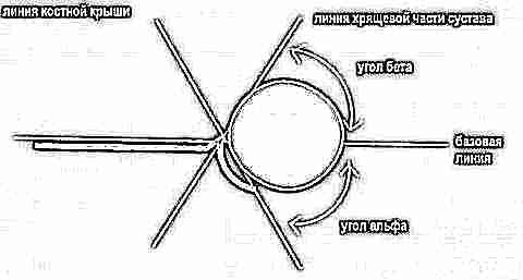 Изображение - Ультразвуковое исследование тазобедренных суставов у новорожденных норма uzi-tazobedrennyh-sustavov-dlya-novorozhdennyh-i-grudnichkov-11