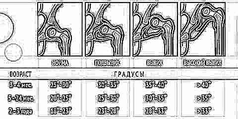 Изображение - Ультразвуковое исследование тазобедренных суставов у новорожденных норма uzi-tazobedrennyh-sustavov-dlya-novorozhdennyh-i-grudnichkov-12