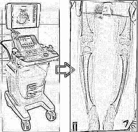 Изображение - Ультразвуковое исследование тазобедренных суставов у новорожденных норма uzi-tazobedrennyh-sustavov-dlya-novorozhdennyh-i-grudnichkov-2