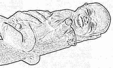 Изображение - Ультразвуковое исследование тазобедренных суставов у новорожденных норма uzi-tazobedrennyh-sustavov-dlya-novorozhdennyh-i-grudnichkov-7