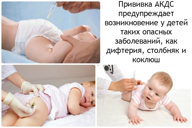 Куда делается прививка акдс детям