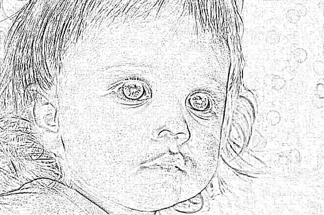 У ребенка слезятся глаза и красные щеки