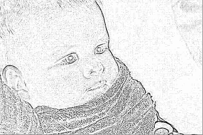 Комаровский - Красные щеки у ребенка: причины, почему. - О Крохе