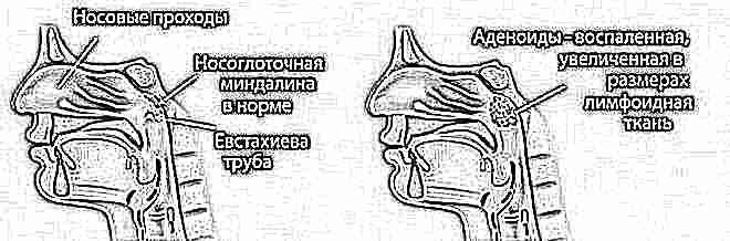 Как вылечить аденоиды народные средства