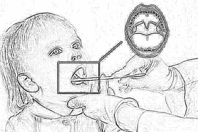 Как вылечить горло ребенку 3 лет народными средством thumbnail