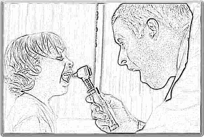 Лечение ларингита у детей в домашних условиях комаровский thumbnail