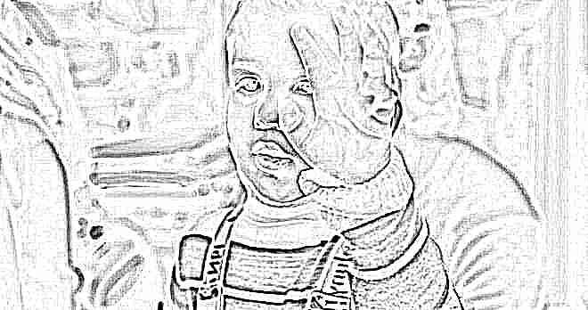 Синяки под глазами у ребенка причины комаровский