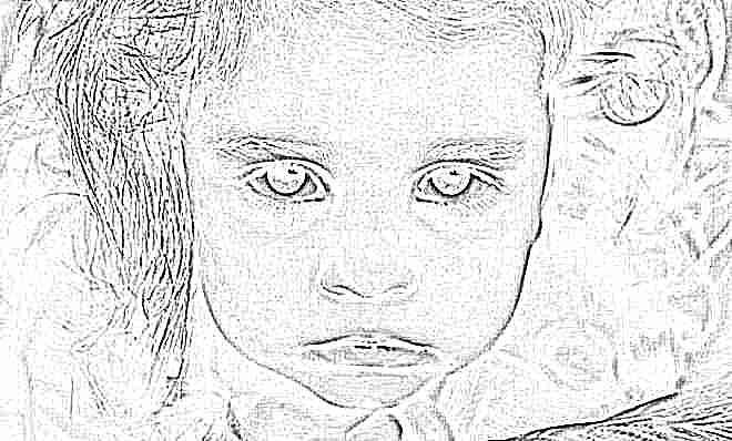 Кровоподтеки вокруг глаз у детей