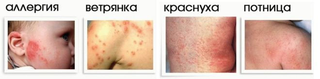 Сыпь и признаки краснухи