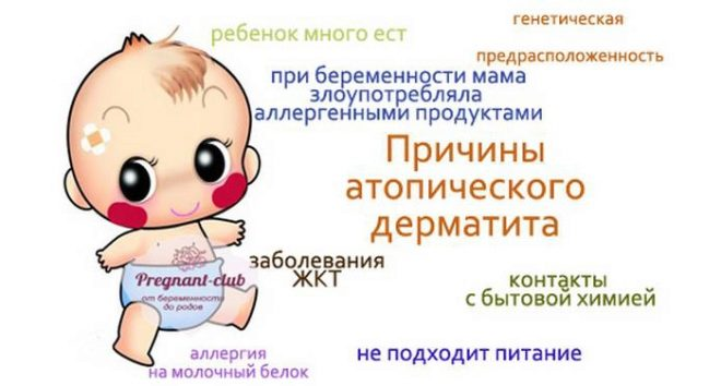 Атопический дерматит у детей (64 фото): симптомы и лечение, как лечить на начальной стадии