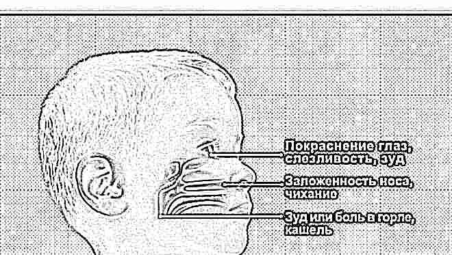 Задний ринит лечение у детей комаровский