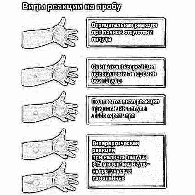Прививка манту все опасности