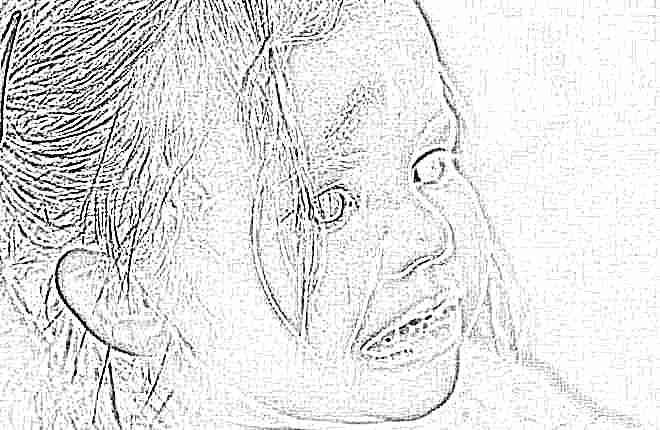 Ушиб мозга у ребенка до года последствия
