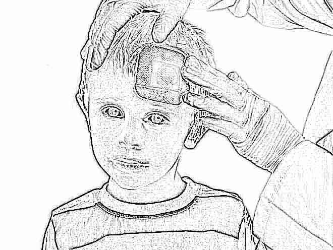 Ушиб головы ребенка затылок