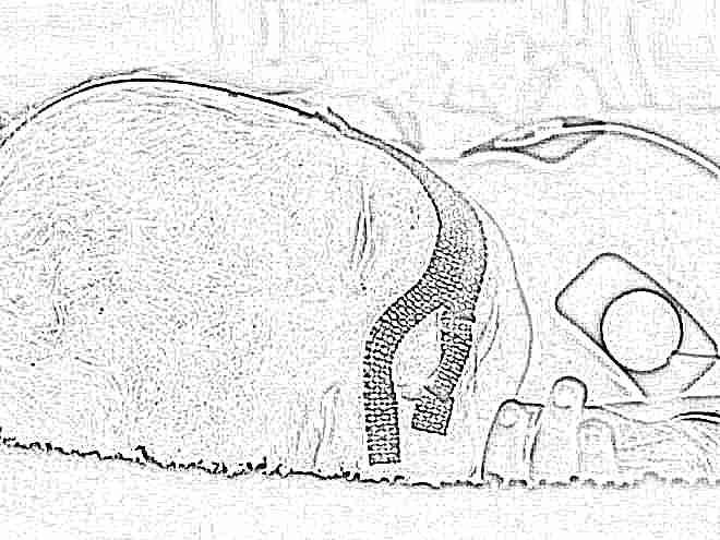 Менингит, первые симптомы минингитовой инфекции у детей, лечение