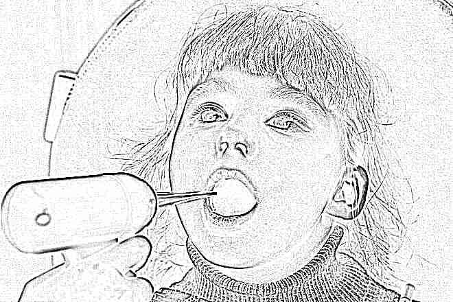 Белые точки на гландах у ребенка с температурой что это может быть