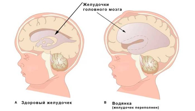 Признаки гидроцефалии у детей и взрозслых