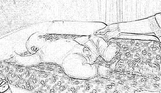 Яйца у новорожденных мальчиков