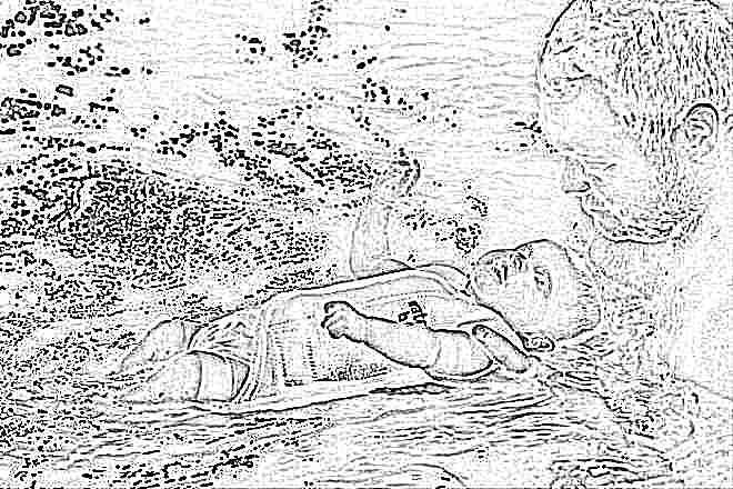Массаж при мраморной коже у ребенка