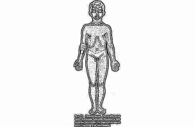 Скарлатина у детей симптомы фото сыпи 9