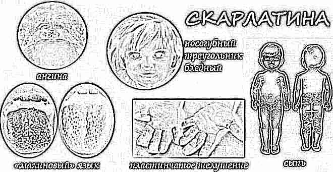 Скарлатина у детей симптомы фото сыпи 54