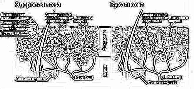 Уход за сухой кожей новорожденного ребенка
