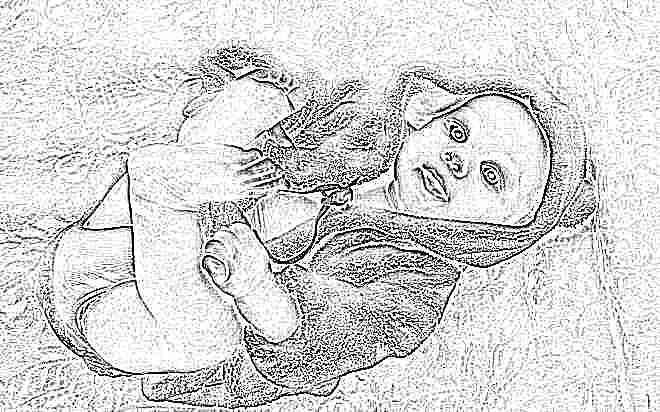 Аллергия у детей фотографии различной сыпи фото