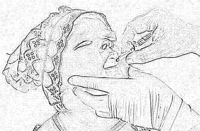 Признаки полиомиелита у детей 56