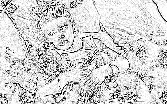 Признаки полиомиелита у детей 60