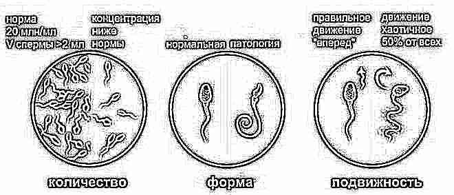 Спермограмма заключение нормозооспермия 26