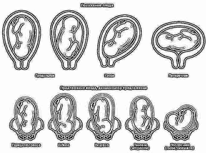Положение плода при беременности 40