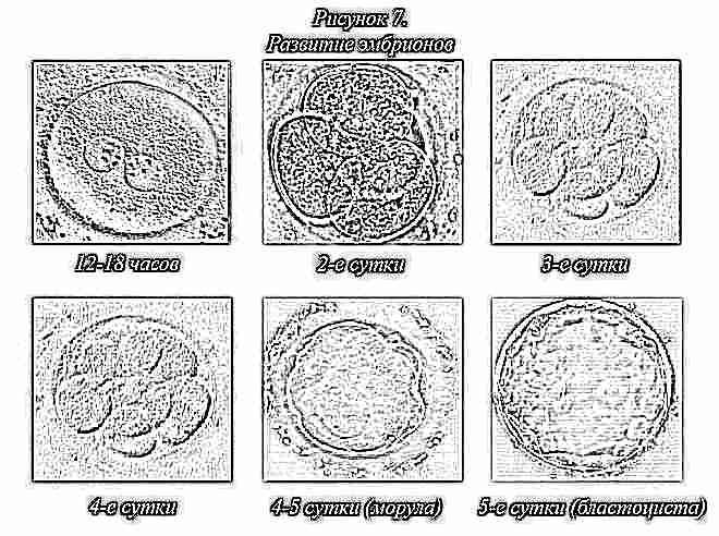 Эмбрион замерзает Что тебе нужно знать