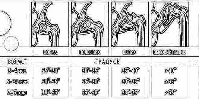 Показатели узи тазобедренных суставов новорожденных